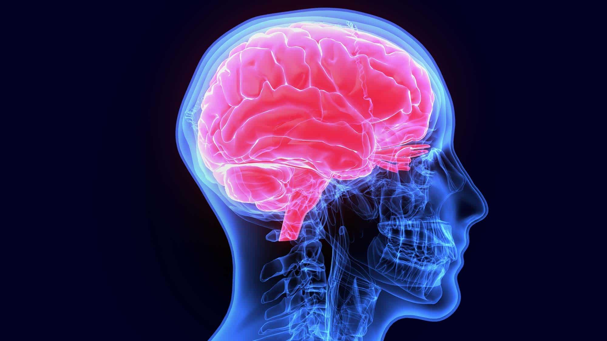 Gehirnaufnahme von CFS Kopf